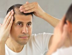 A Middle Age man Concerned About His Hair Loss InFront Of The Mirror.