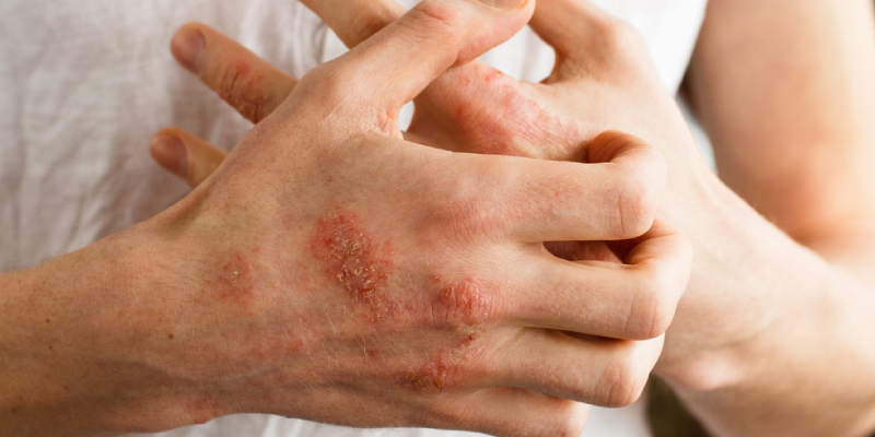 A Man Having So Much Of Rashes On His Hand.