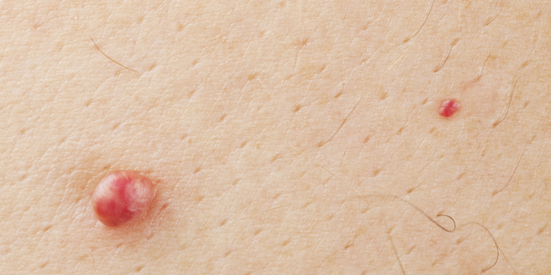 A Close-up Image Of Pimples On Skin.